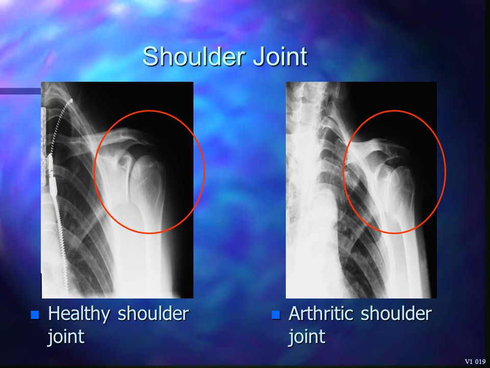 Shoulder Joint Healthy shoulder joint Arthritic shoulder joint V1 019