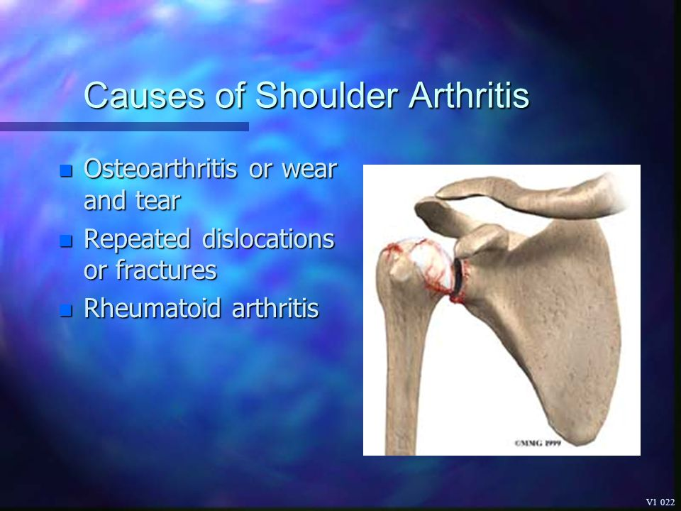 Causes of Shoulder Arthritis