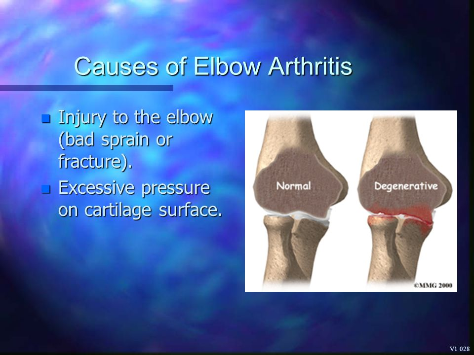 Causes of Elbow Arthritis