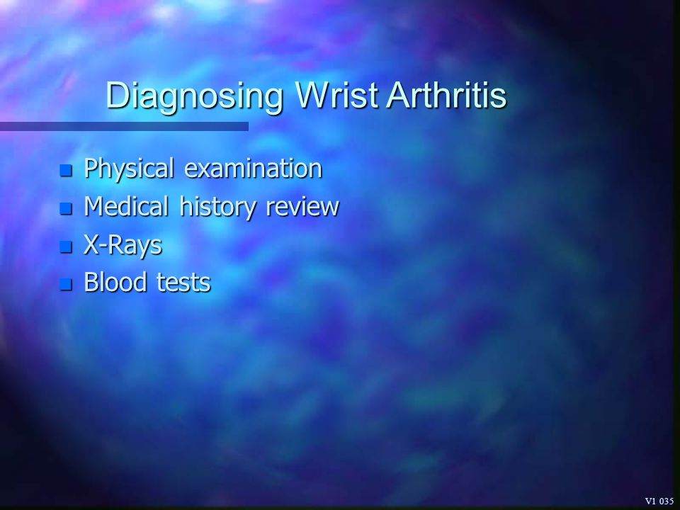 Diagnosing Wrist Arthritis