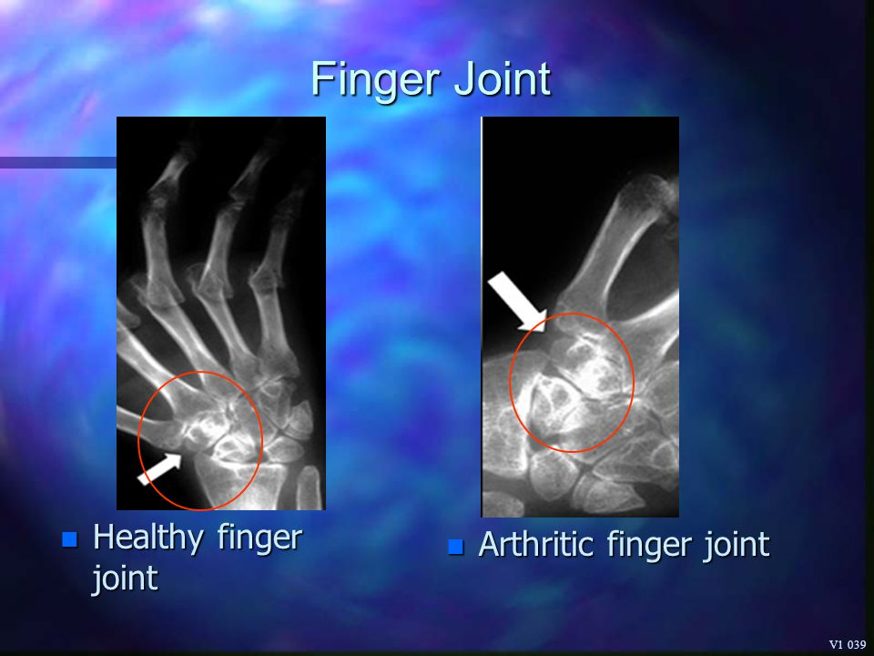 Finger Joint Healthy finger joint Arthritic finger joint V1 039