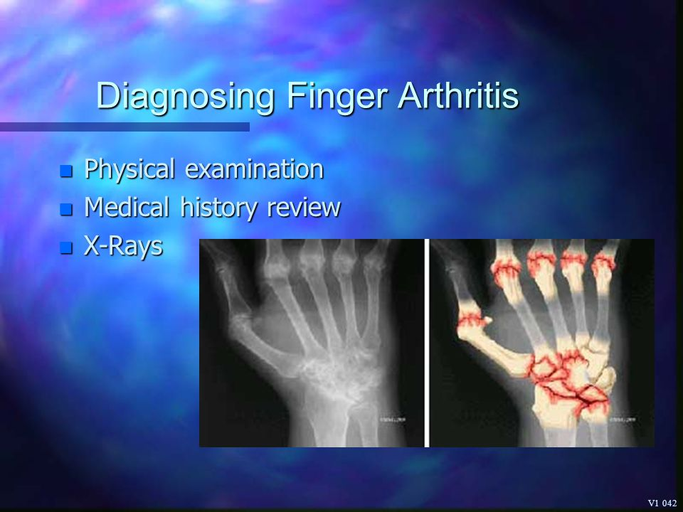Diagnosing Finger Arthritis