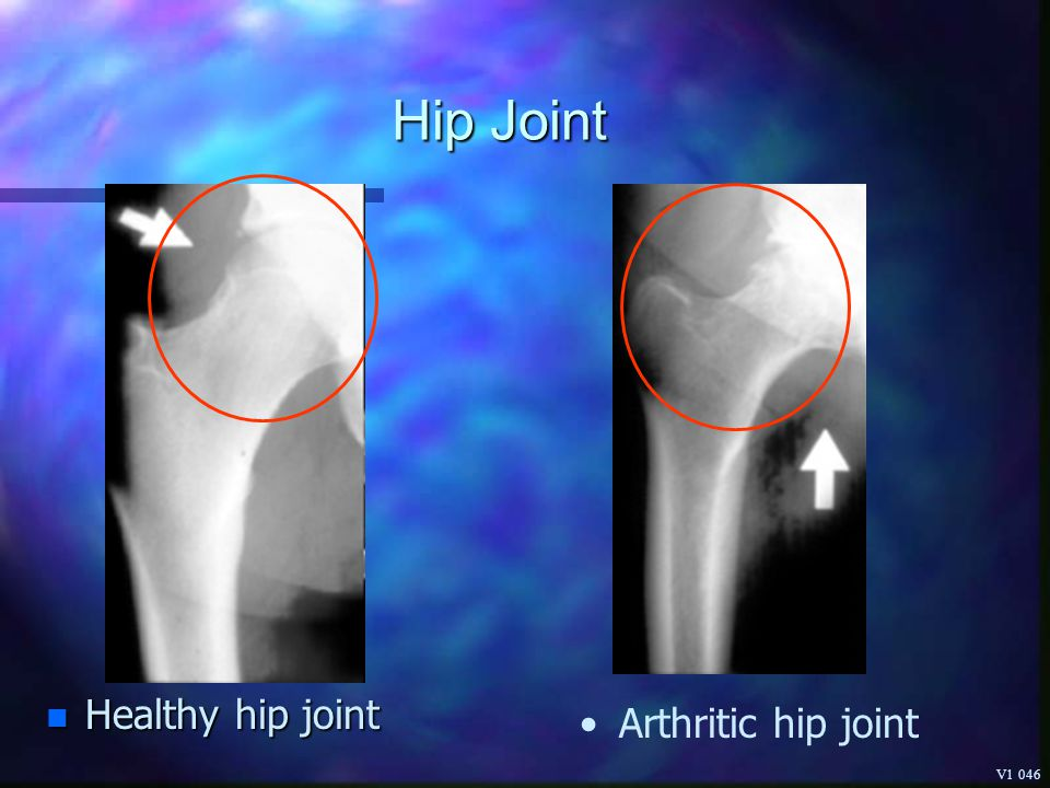Hip Joint Healthy hip joint Arthritic hip joint V1 046