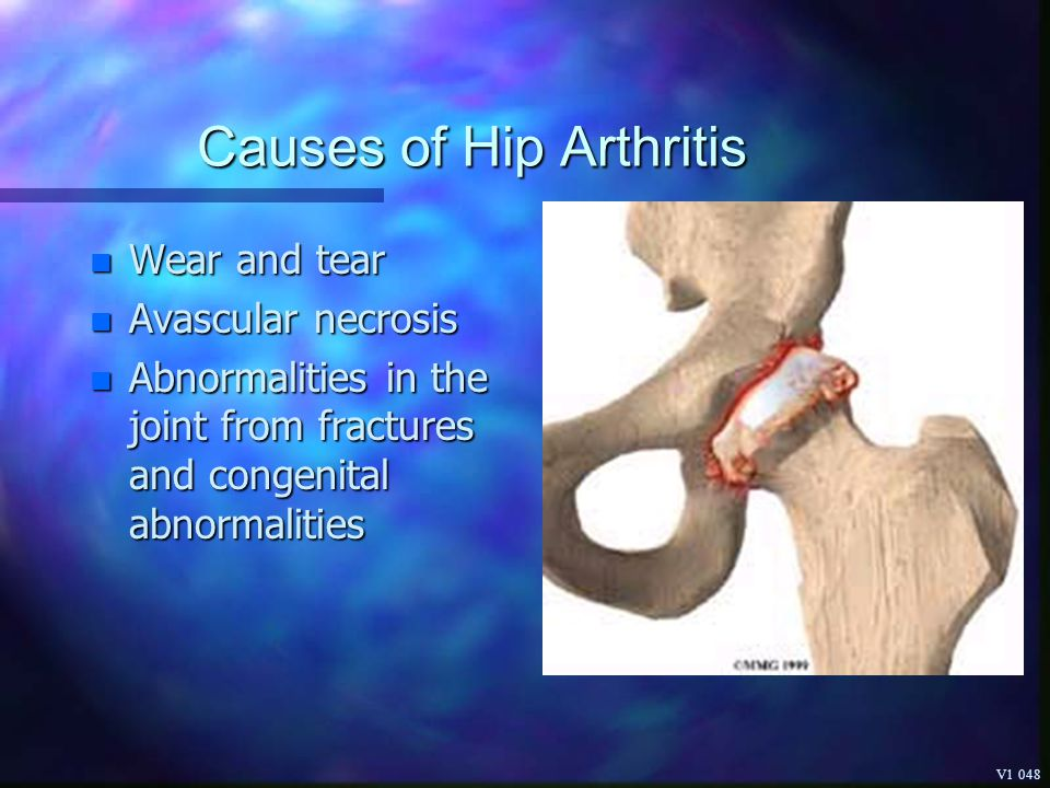 Causes of Hip Arthritis