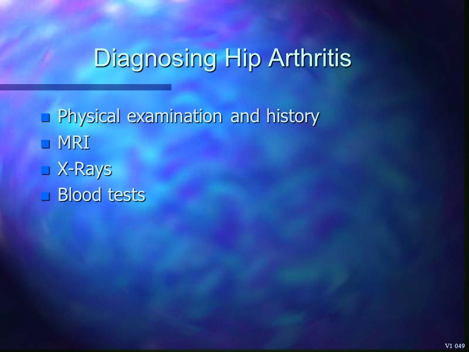 Diagnosing Hip Arthritis