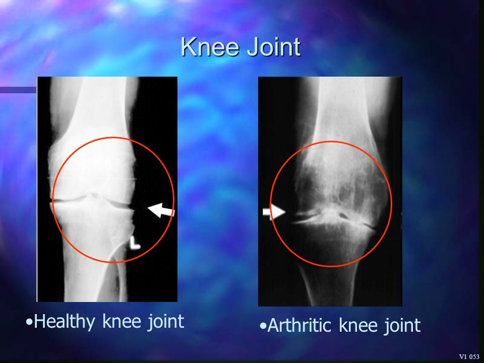 Knee Joint Healthy knee joint Arthritic knee joint V1 053