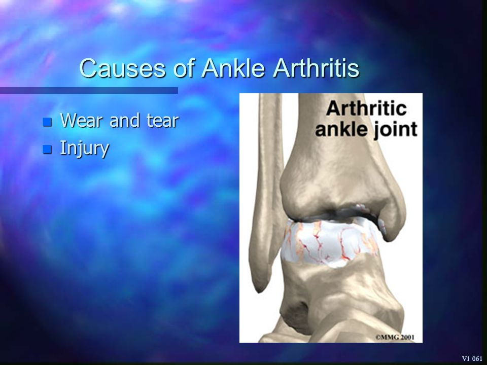 Causes of Ankle Arthritis