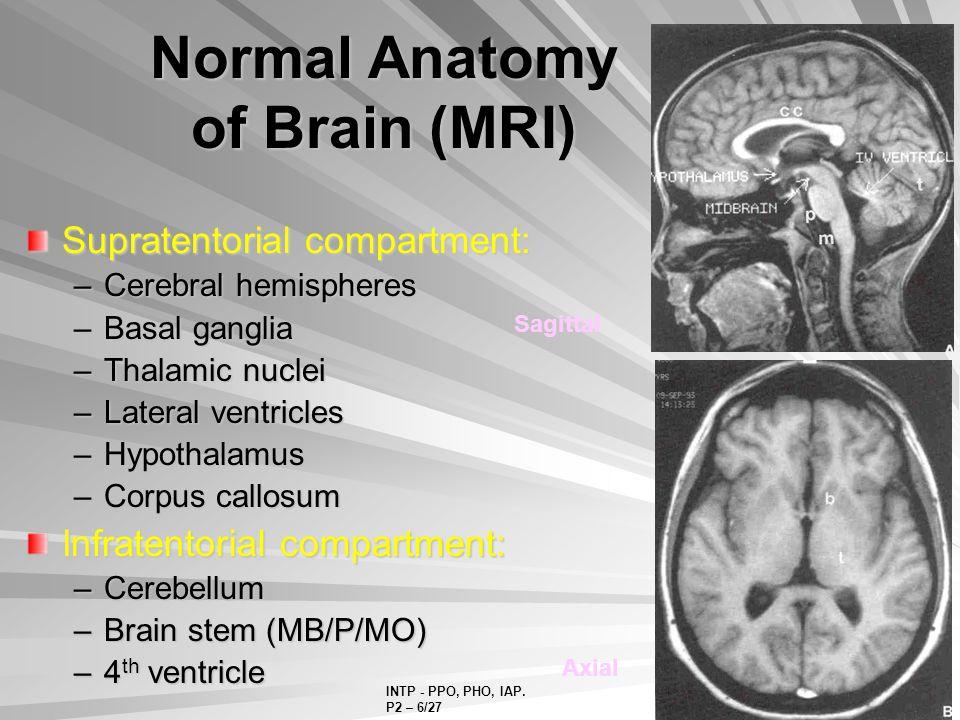 Brain mri anatomy