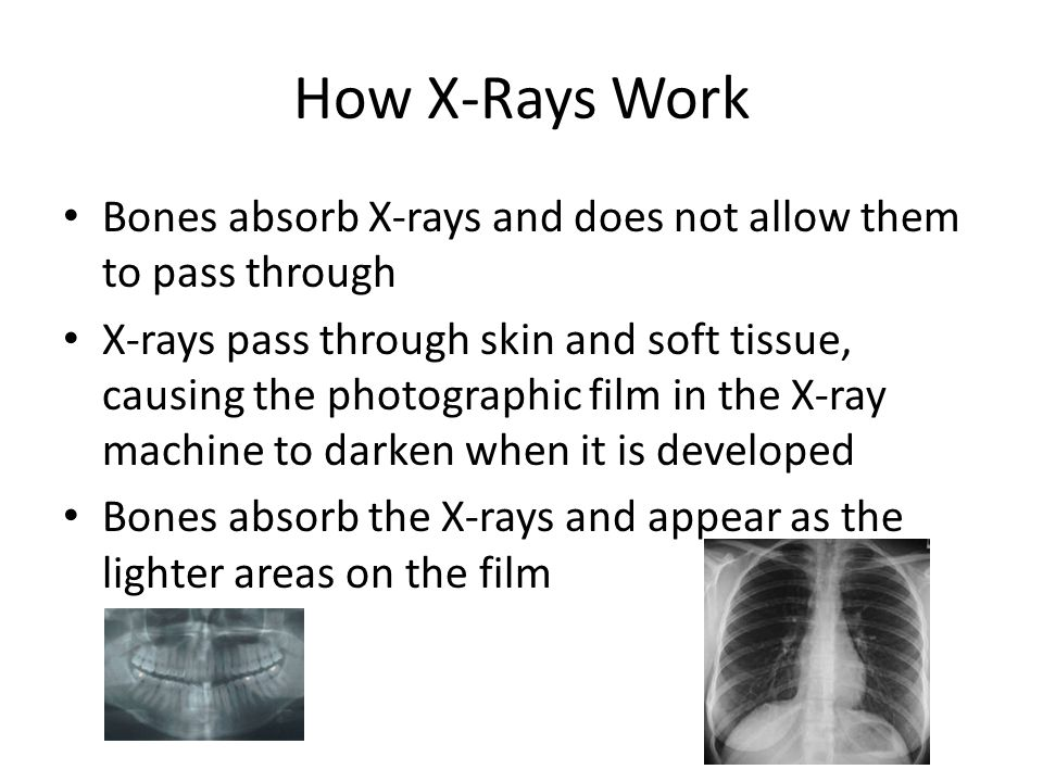 How X-Rays Work Bones absorb X-rays and does not allow them to pass through.