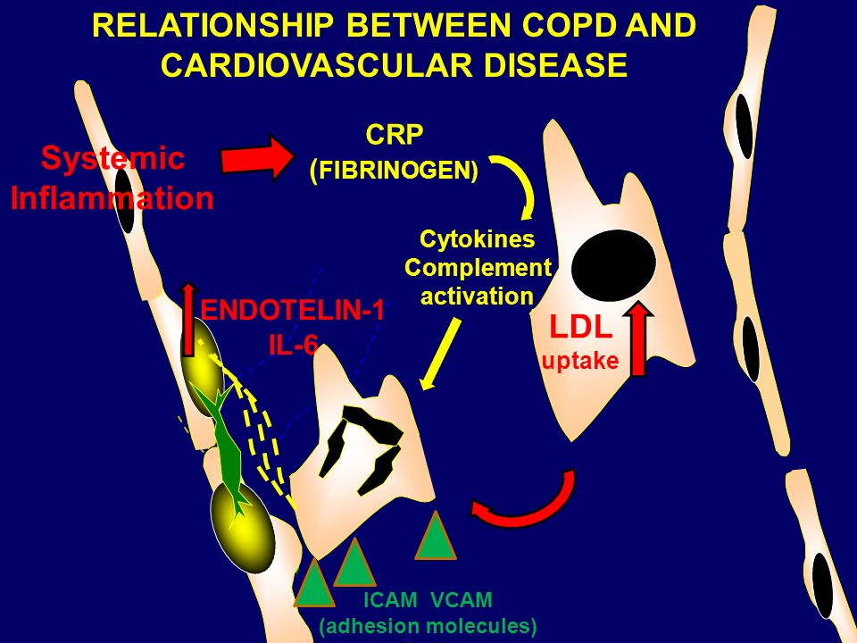 RELATIONSHIP BETWEEN COPD AND CARDIOVASCULAR DISEASE
