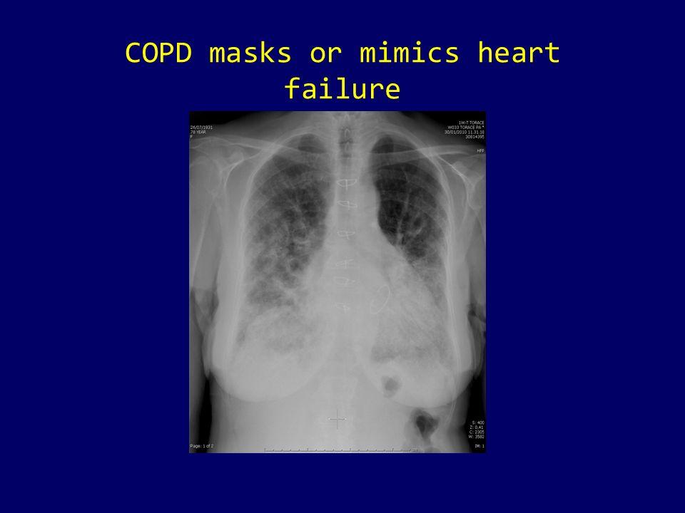COPD masks or mimics heart failure