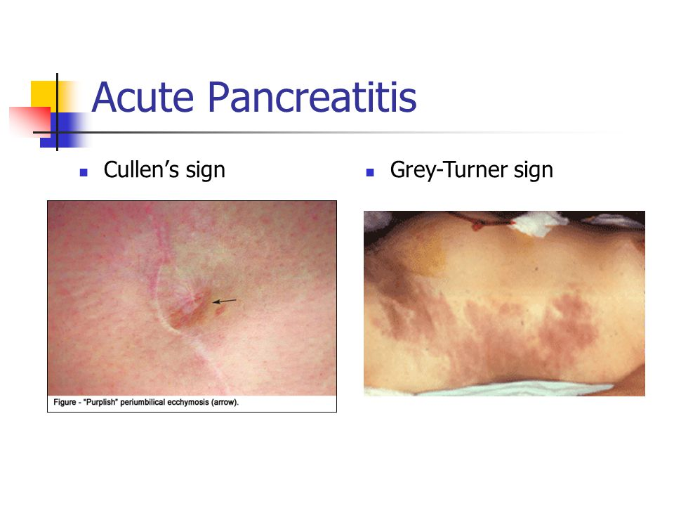 Acute Pancreatitis Cullen's sign Grey-Turner sign