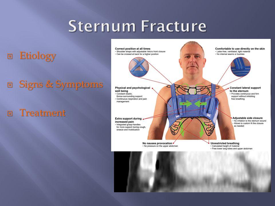 breast bone fracture
