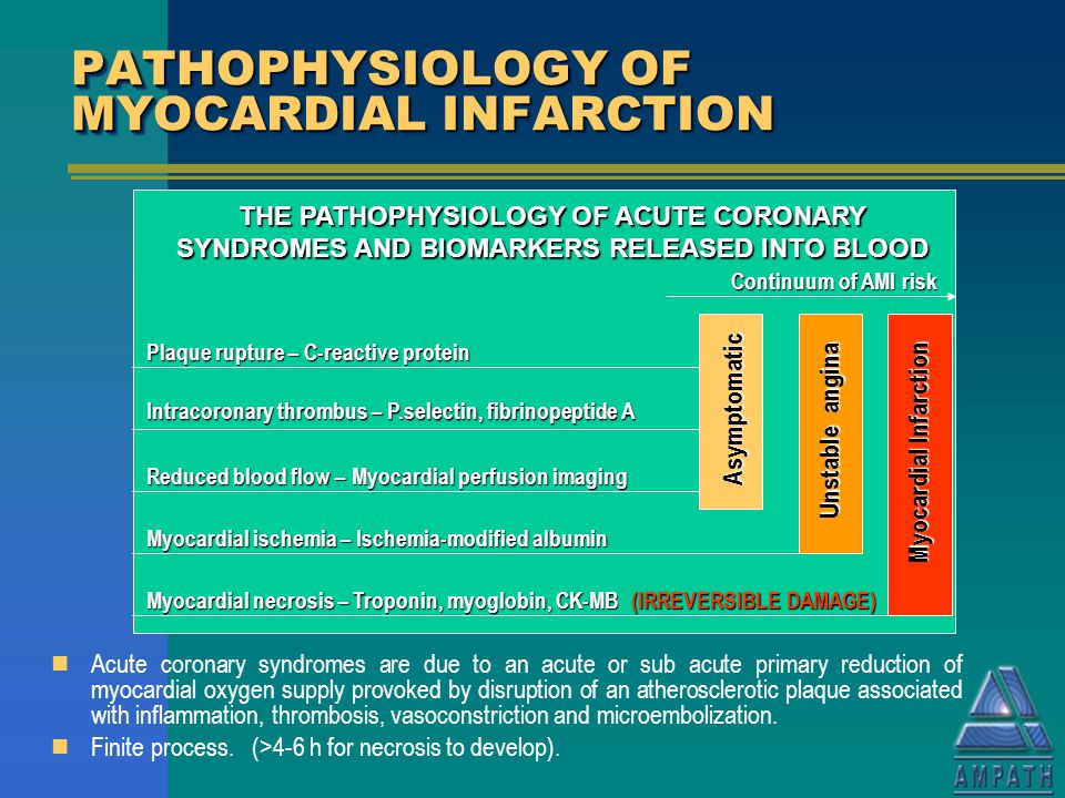 pathophysiology of myocardial infarction essay View and download myocardial infarction essays examples also discover topics, titles, outlines, thesis statements, and conclusions for your myocardial infarction essay.