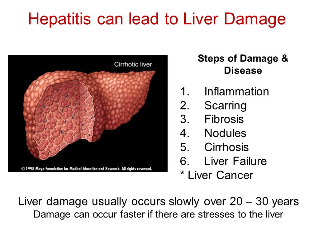 Hepatitis can lead to Liver Damage