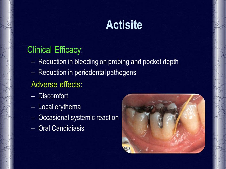 Systemic And Local Antimicrobial Agents In Periodontal