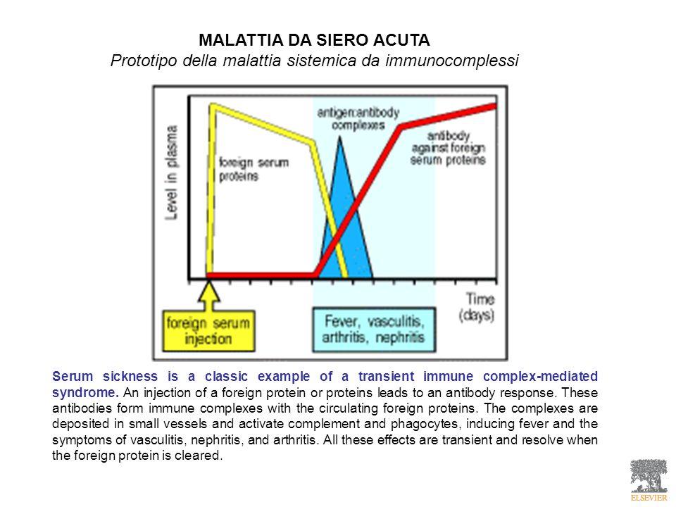 MALATTIA DA SIERO ACUTA