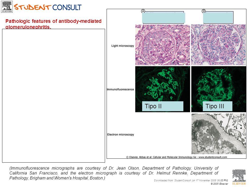 Pathologic features of antibody-mediated glomerulonephritis.