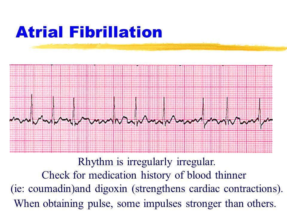 Region X Cardiac SOP's EKG Rhythms and Interventions - ppt ...