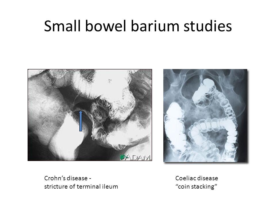 Quiz & Worksheet - The Bowel Elimination Process | Study.com