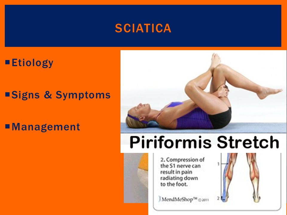 Sciatica Etiology Signs & Symptoms Management