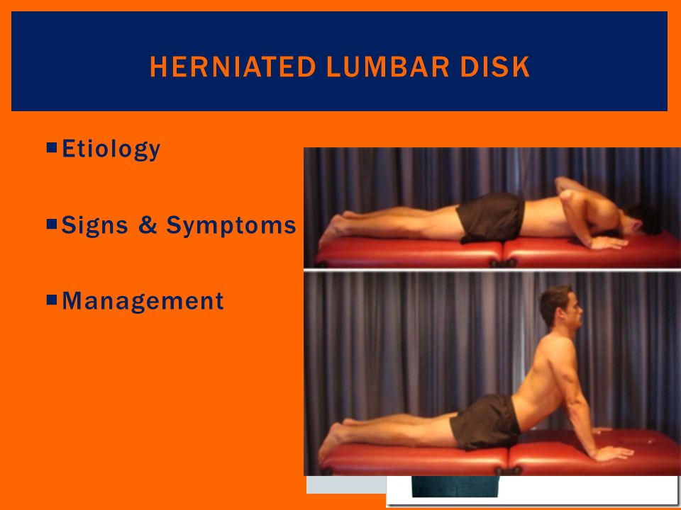 Herniated Lumbar Disk Etiology Signs & Symptoms Management