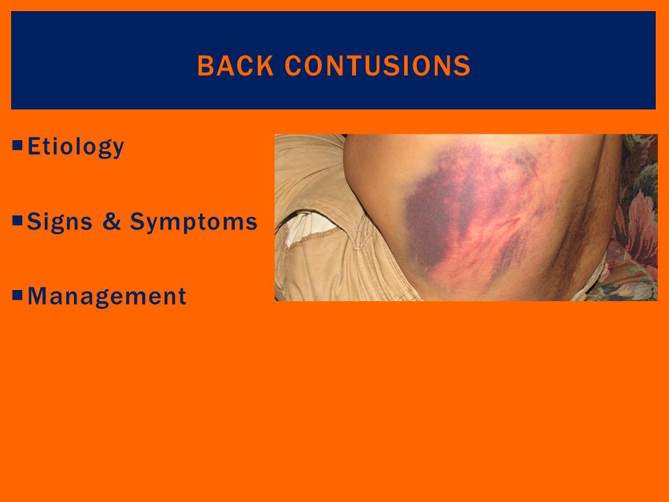 Back Contusions Etiology Signs & Symptoms Management