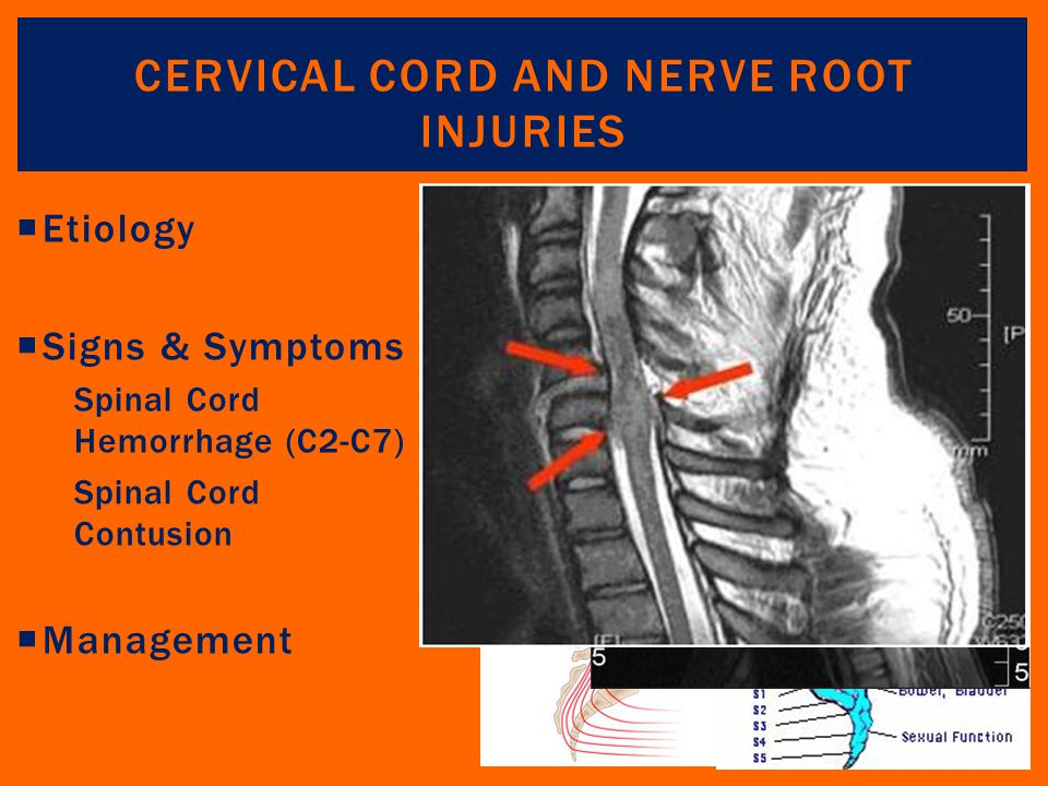 Cervical Cord and Nerve Root Injuries