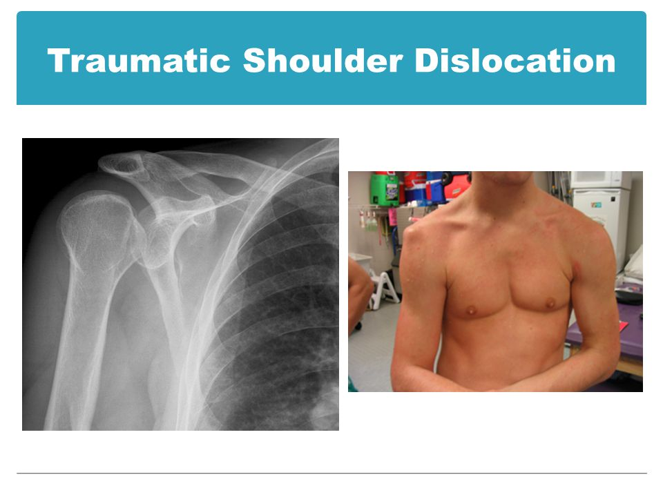 Dislocated shoulder - aftercare