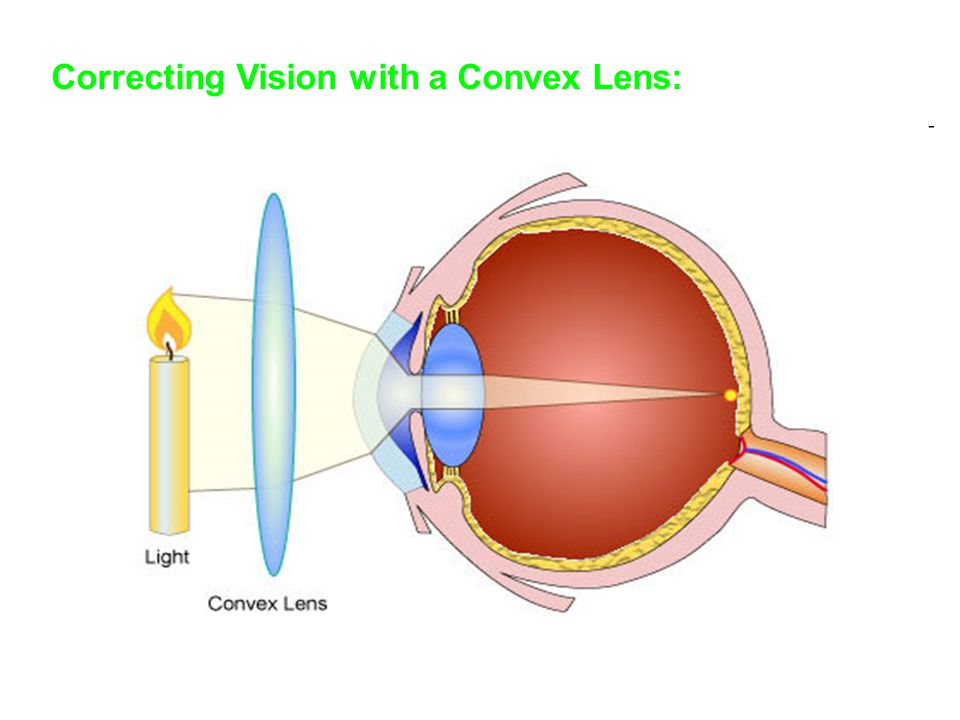 Correcting Vision with a Convex Lens: