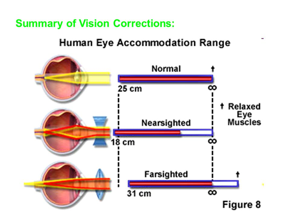 Summary of Vision Corrections: