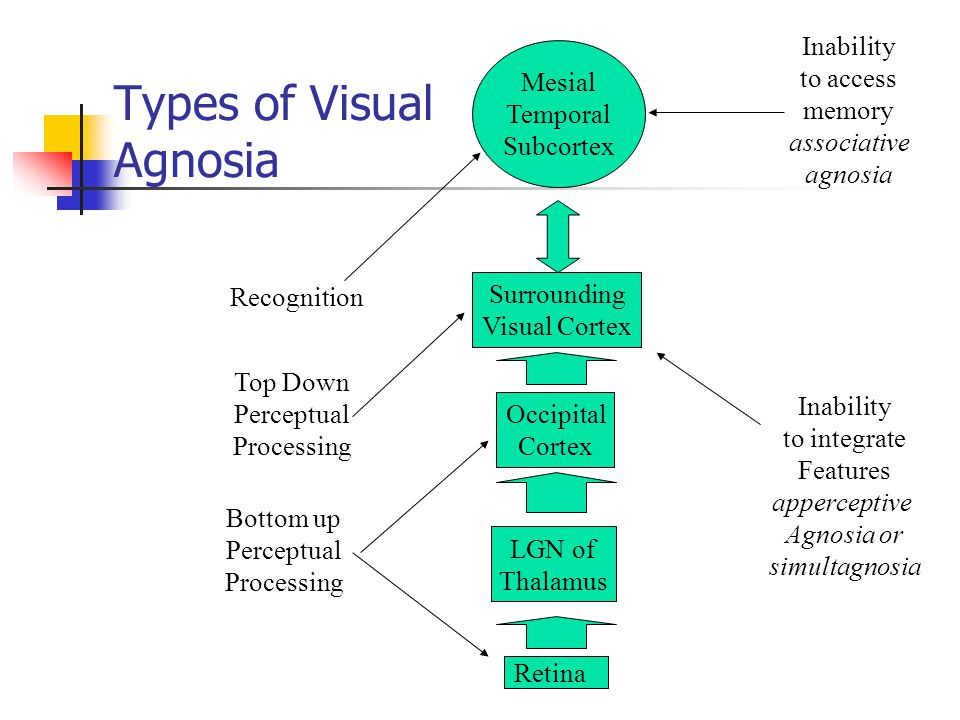 Types of visual agnosia ppt download for Visual motor processing disorder