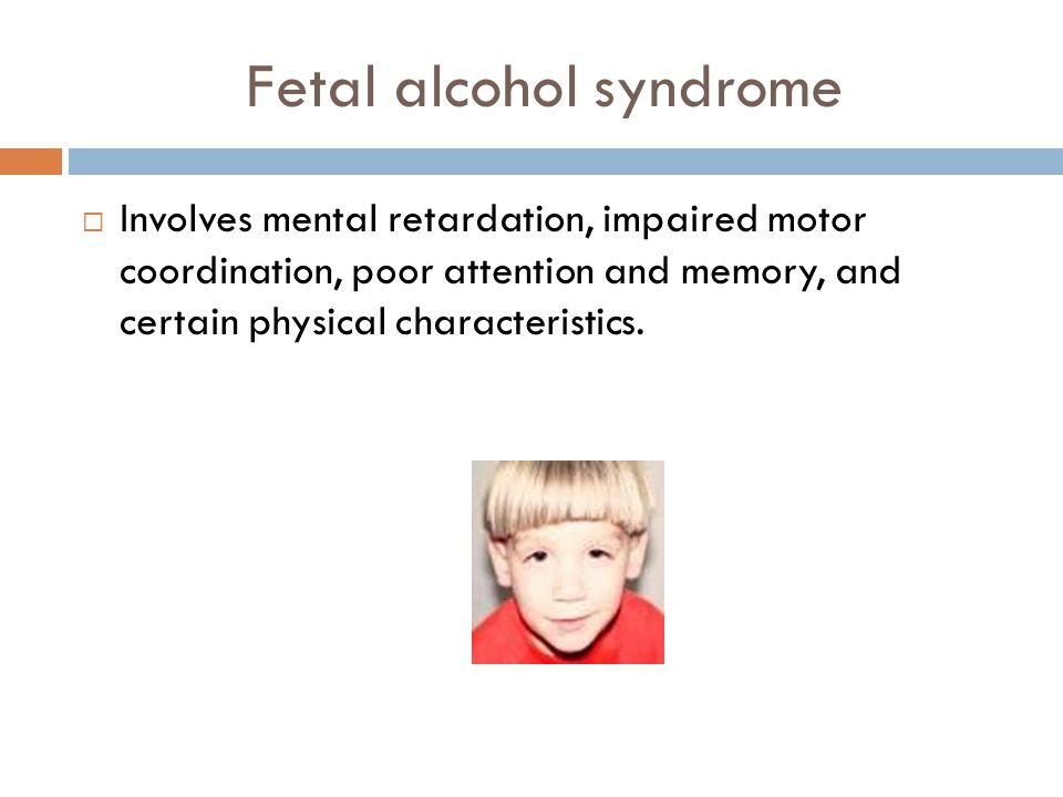 the physical characteristics of fetal alcohol syndrome Fasd (fetal alcohol spectrum disorder) is an umbrella term describing the  it is  identified by abnormal facial features, central nervous system problems and   fasd can cause physical and mental disabilities of varying levels of severity.