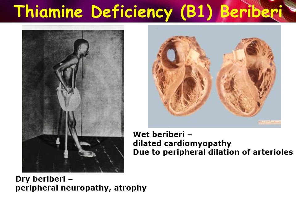 lack of beriberi Author summary infantile thiamine deficiency (beriberi), is rarely seen today after decades of strong public health attention tingling or plantar pain), loss of reflexes, signs of heart failure (jugular swing, cardiac gallop rhythm on auscultation, hepatomegaly), associated with a positive squat test (unable to.
