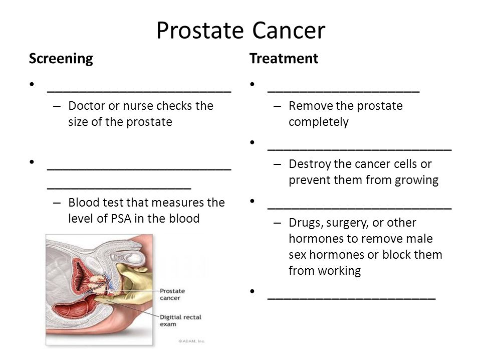 Prostate Cancer Screening Treatment _______________________