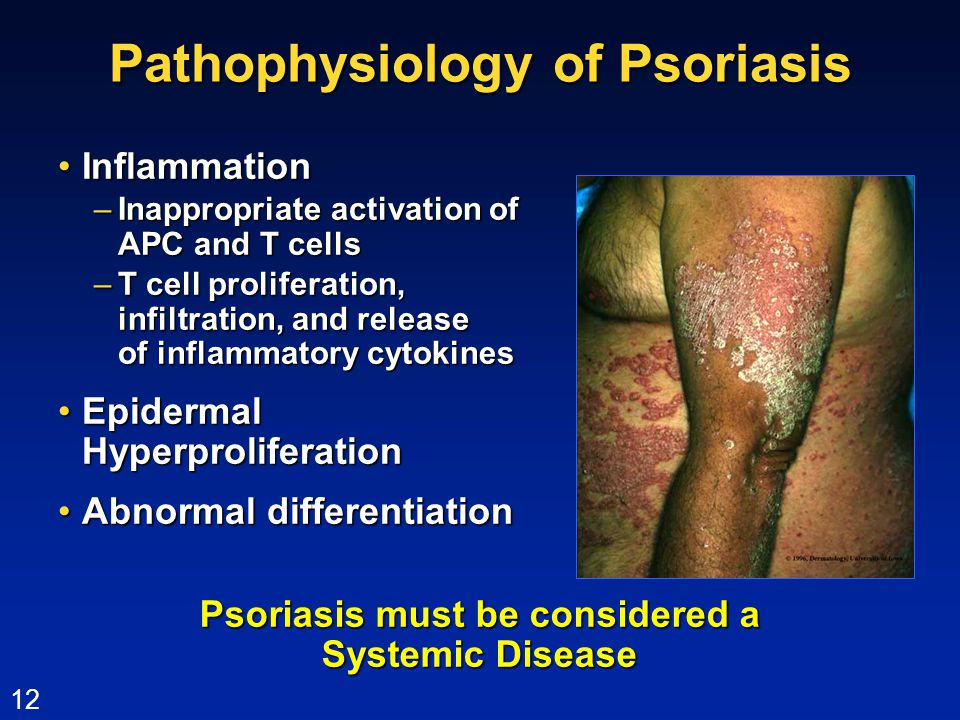 psoriasis systemic disease