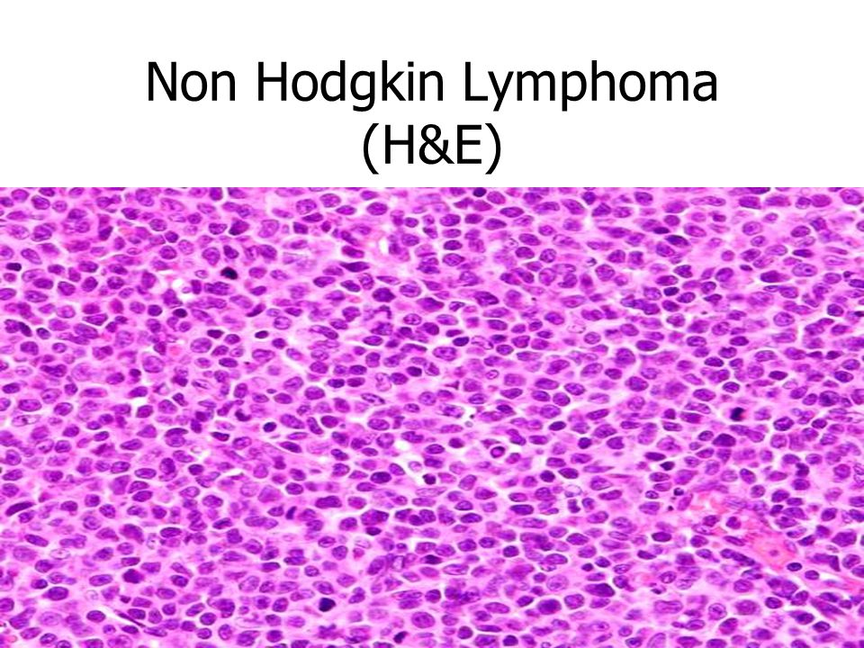non hodgkins lymphoma Stage 3 non-hodgkin (or hodgkin's) lymphoma is a term applied to certain diagnoses of a type of cancer that develops in the lymph system doctors assign stages to a lymphoma diagnosis based on how many tumors are found, and how widespread they are in the body.