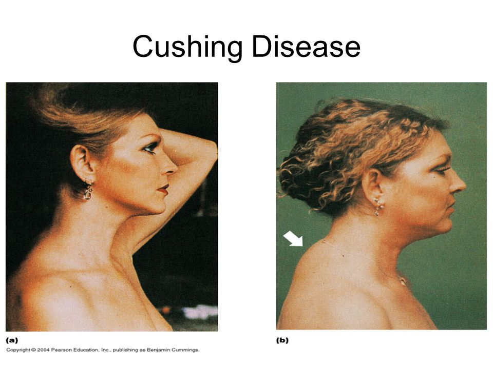 cushings syndrome hormonal disorder biology essay Cushing's syndrome is a hormonal disorder the cause is long-term exposure to too much cortisol, a hormone that your adrenal gland makes sometimes, taking synthetic hormone medicine to.
