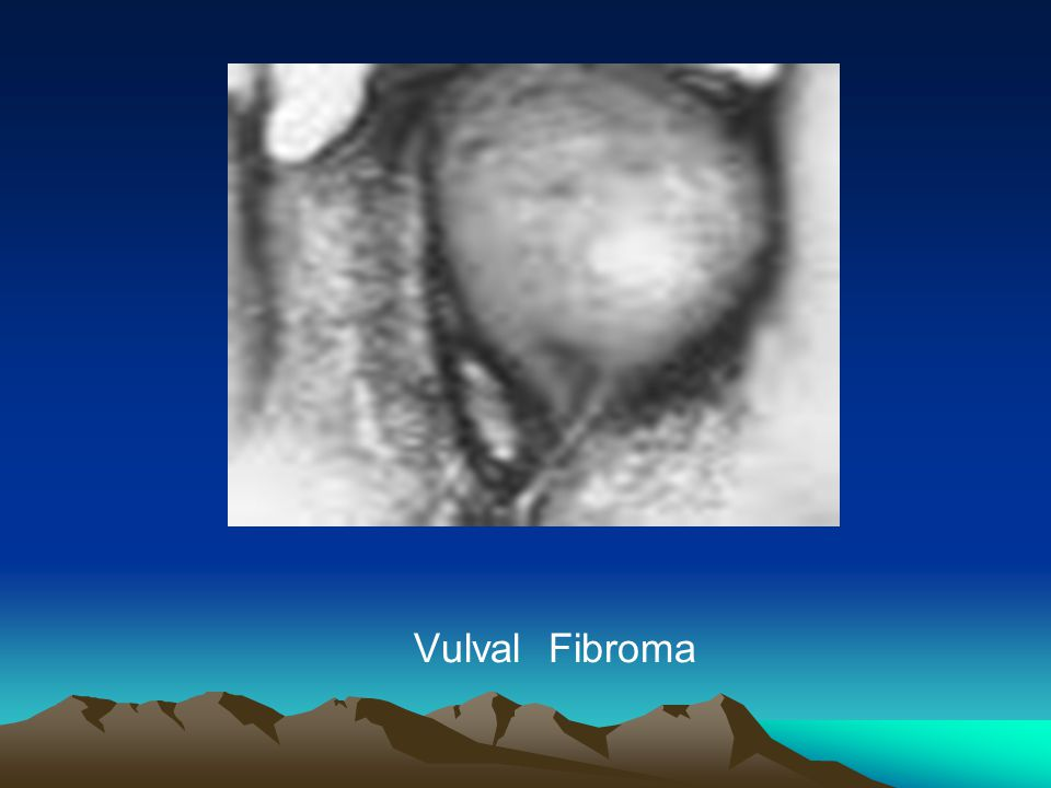 fibroma of the vulva