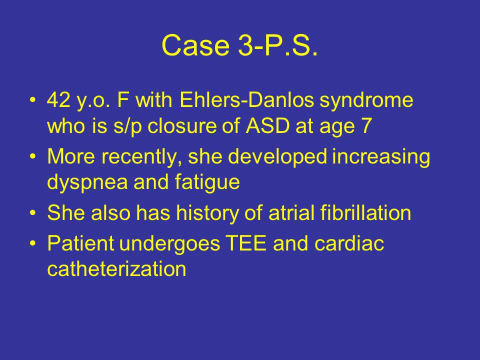 "research paper on ehlers danlos syndrome Ehlers-danlos syndrome is a group of genetic connective tissue disorders characterized by unstable, hypermobile joints, loose, ""stretchy"" skin, and fragile tissuespeople with ehlers-danlos features need to see a doctor who knows about this and other connective tissue disorders for an accurate diagnosis often this will be a medical geneticist."