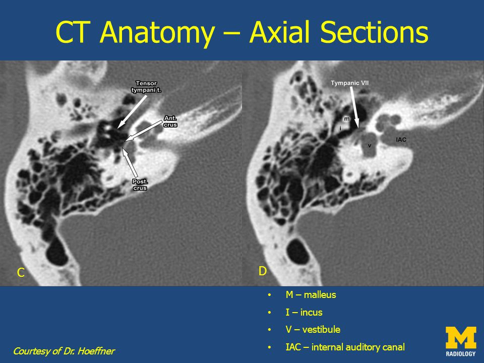 Ct anatomy review
