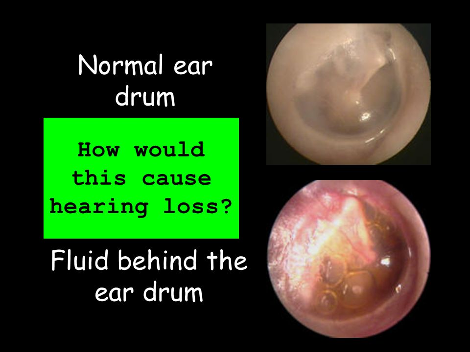 How would this cause hearing loss