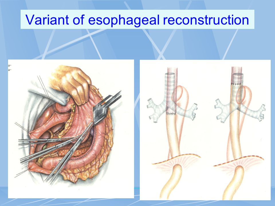 Variant of esophageal reconstruction