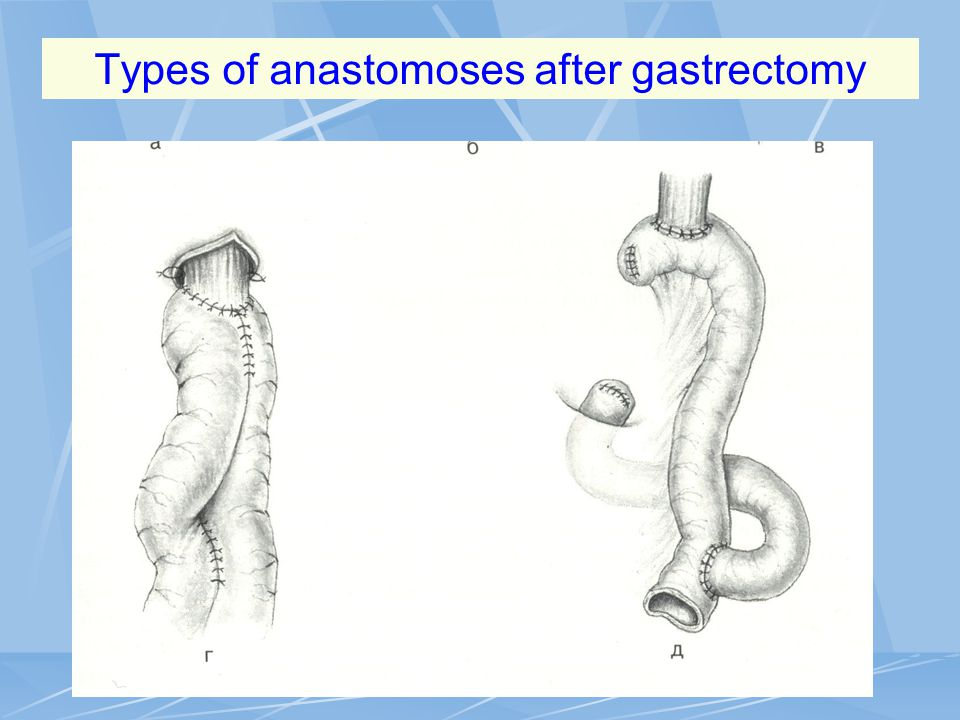 Types of anastomoses after gastrectomy