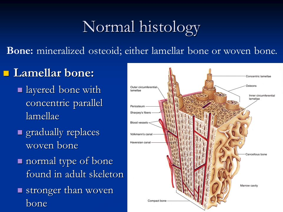 Musculoskeletal Block Pathology Lecture 1 Fracture And Bone Healing
