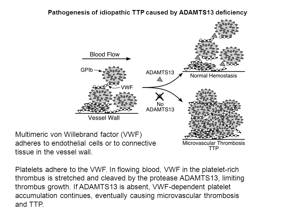 ttp case study Actually causes ttp8 here we report a case of clopidogrel-associated ttp and clopidogrel-associated thrombotic thrombocytopenic study of 5 ttp.