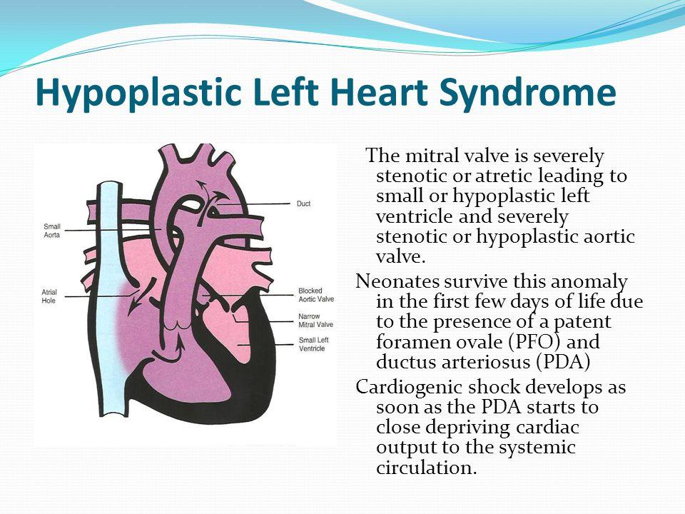 Congenital Heart Dİseases Ppt Video Online Download