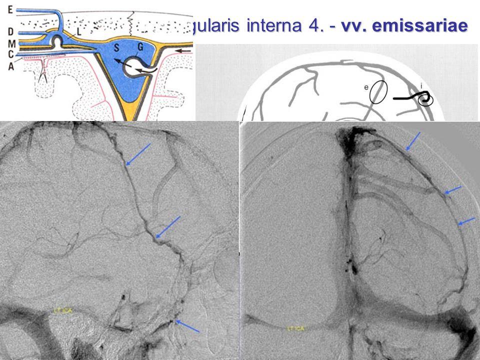Tributaries of vena jugularis interna 4. - vv. emissariae