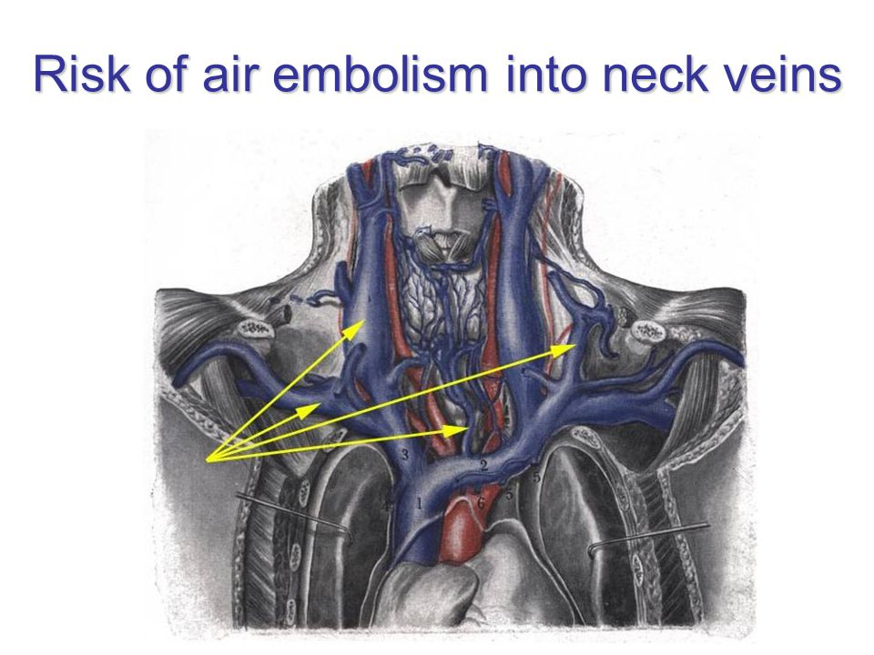 Risk of air embolism into neck veins