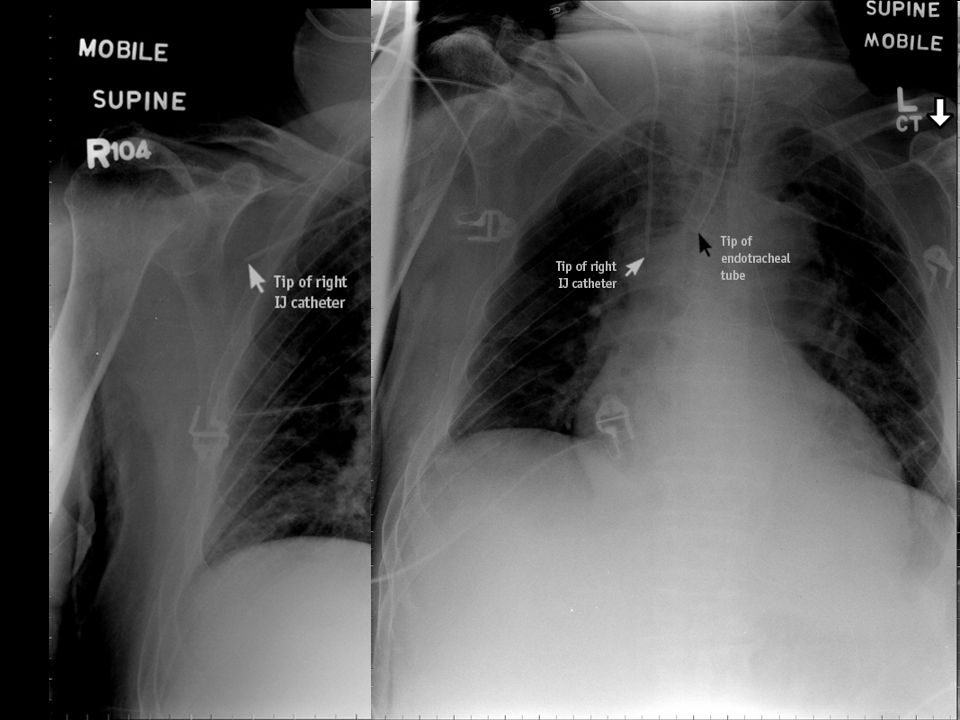 Wrong position of catheter